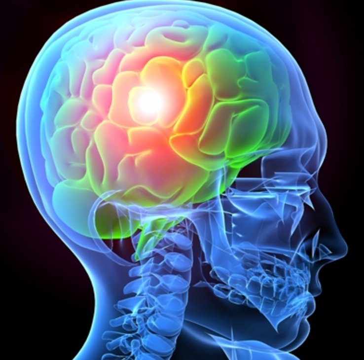A brain injury can have a massive impact on your life.